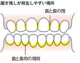 f:id:hamigaki8020:20161222145455j:plain