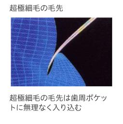 f:id:hamigaki8020:20161225165426p:plain