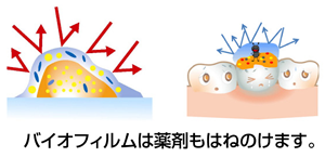 f:id:hamigaki8020:20161225210438p:plain