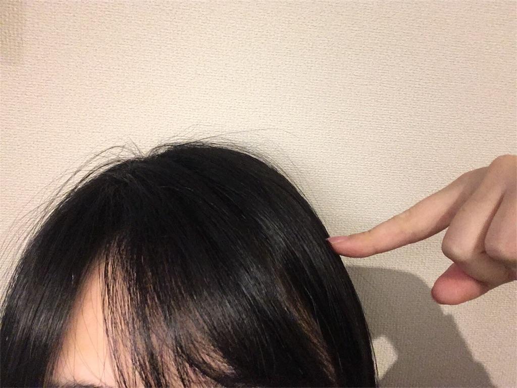 f:id:hamiko-00:20170305080710j:image