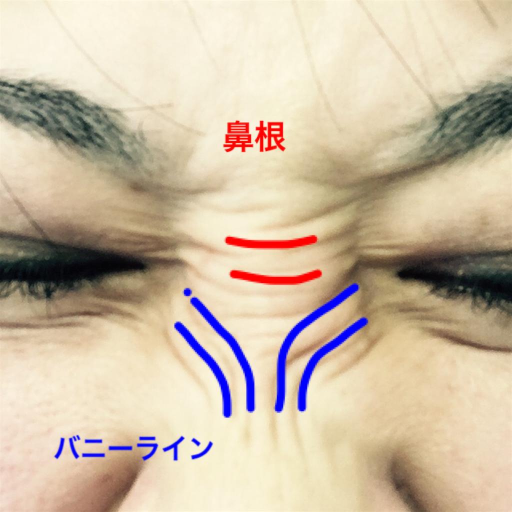 f:id:hamiko-00:20170324200240p:image