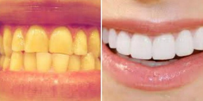 f:id:hammastevalgendamine:20170216214253p:plain