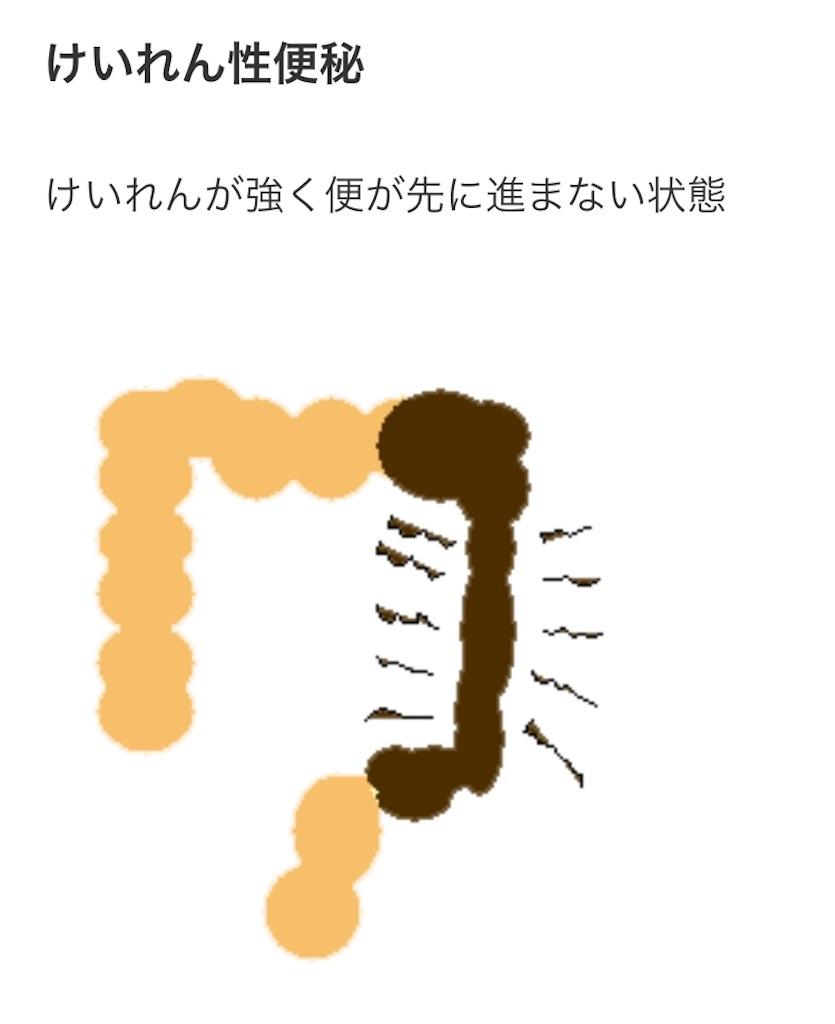 f:id:hanak50kamoto:20190101204603j:image