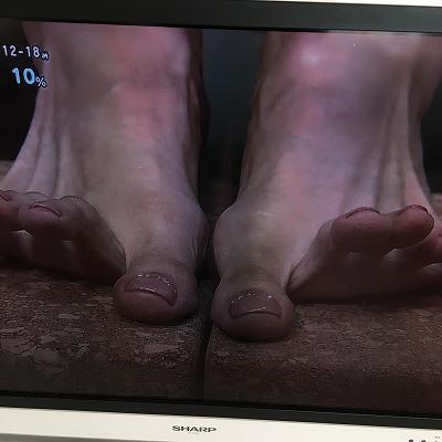 足の指を鍛える運動3