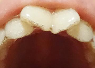 インビザライン矯正 上の歯 1個目