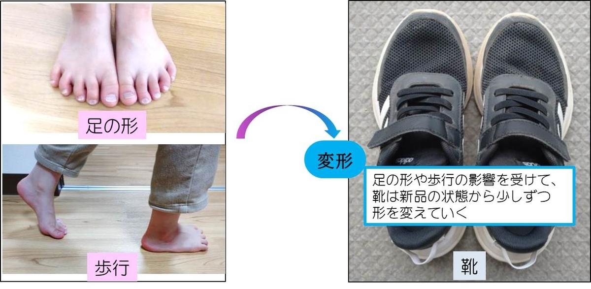 子供の足の形・歩行が子供靴へ与える影響のイメージ図