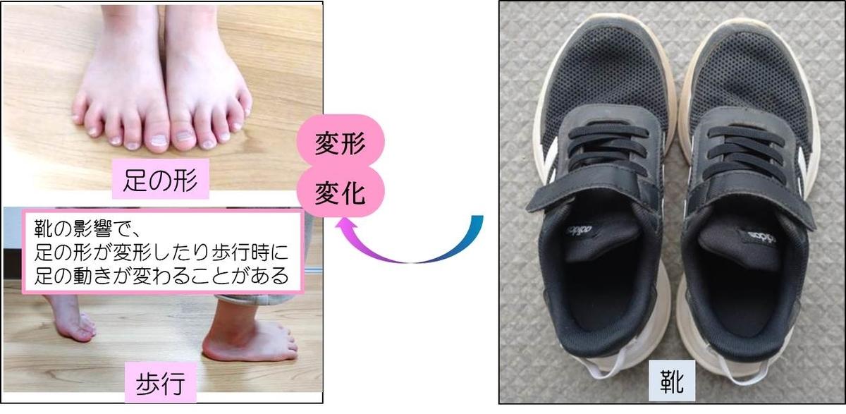 靴により足の形や歩行へ与える影響のイメージ図