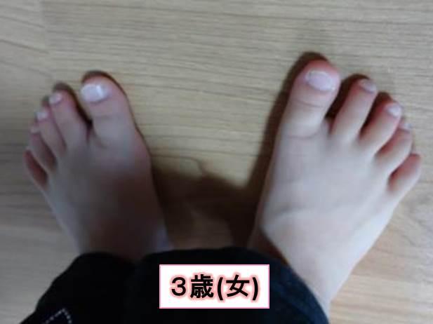 足の爪(3歳女)