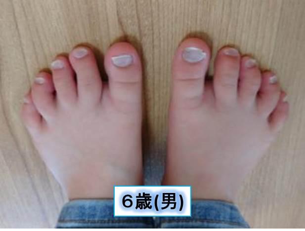 足の爪(6歳男)