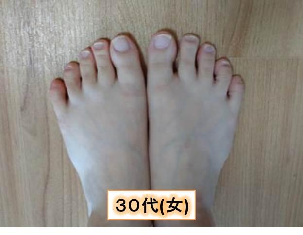 足の爪(30代女)