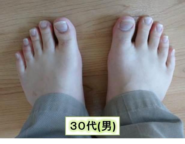 足の爪(30代男)