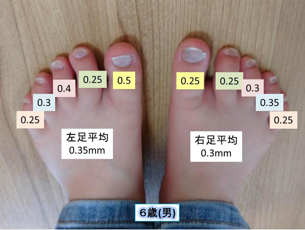 測定データ6歳男(足の爪の厚み)