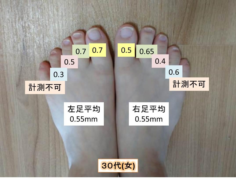 測定データ30代女(足の爪の厚み)