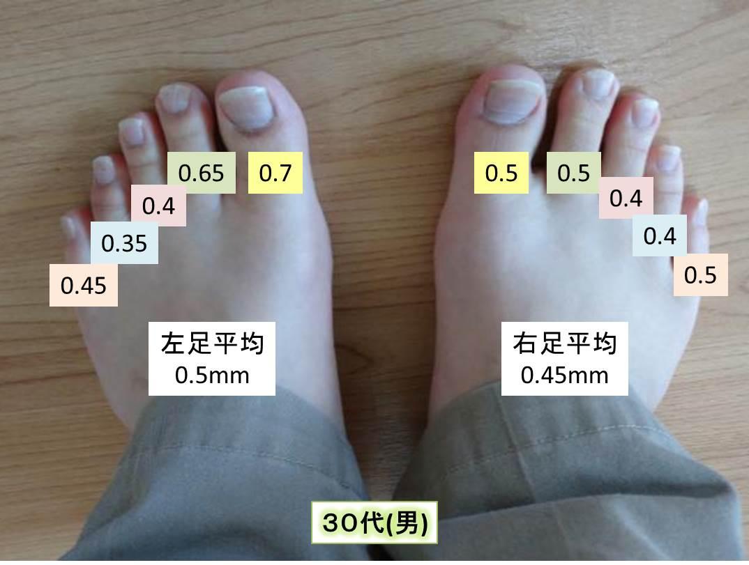 測定データ30代男(足の爪の厚み)