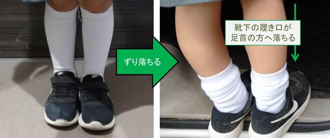 靴下がずり落ちるのイメージ図