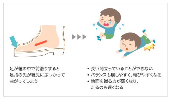 前滑りする靴の影響(引用)