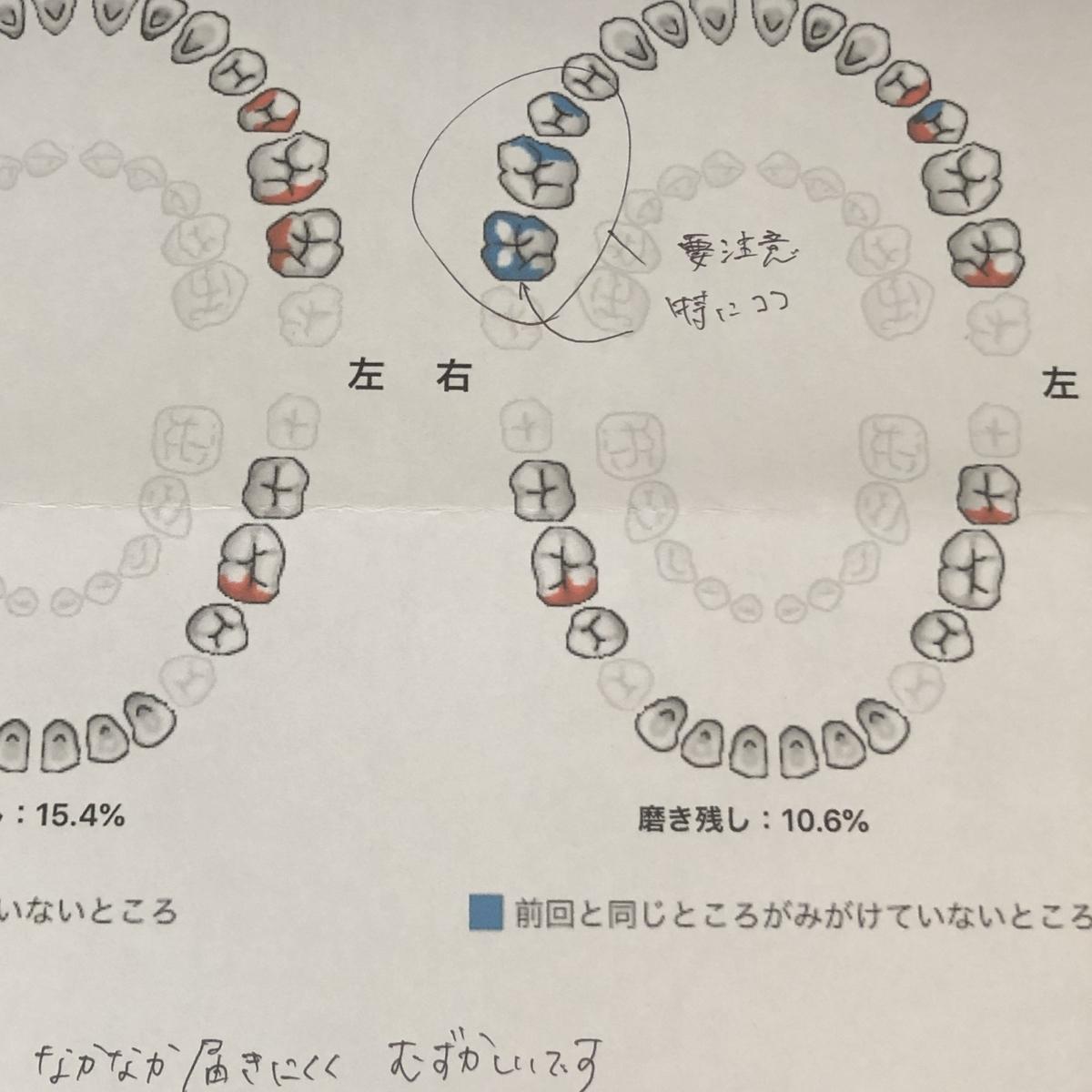 f:id:hanjukuajitama:20190917165008j:plain