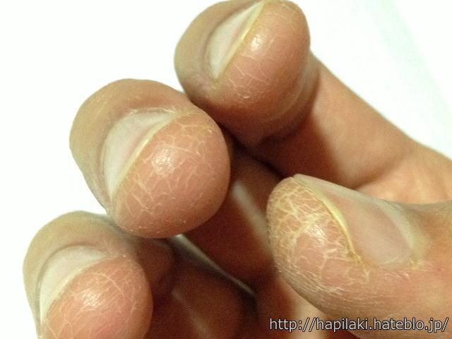 指の皮膚が割れる