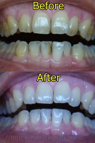 歯の美白ビフォー・アフター