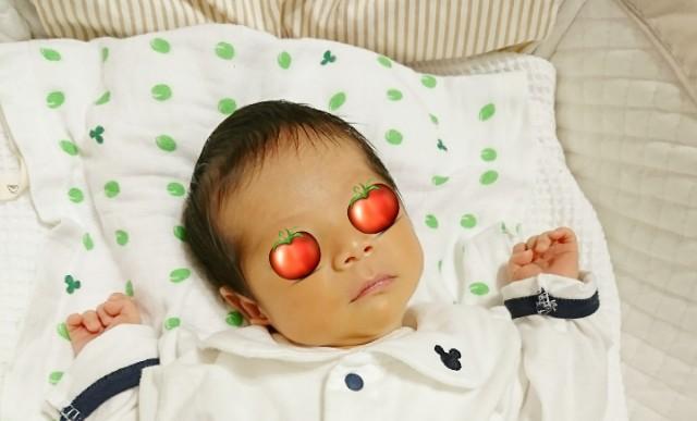 新生児 黄疸 ビリルリン値