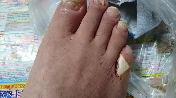 足にいるアリ