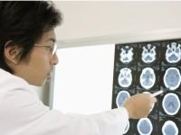腫瘍には良性のものと悪性のものがあります!良性腫瘍と悪性腫瘍の違い・特徴とはなんでしょう!