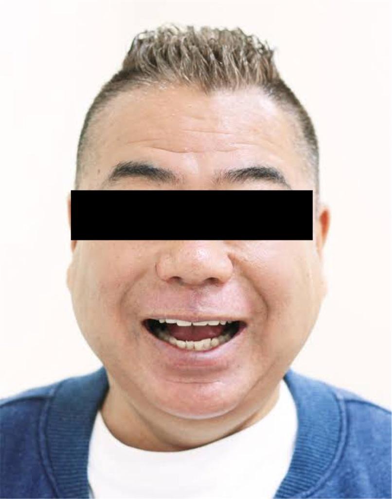 f:id:hareoku:20210313123004j:image