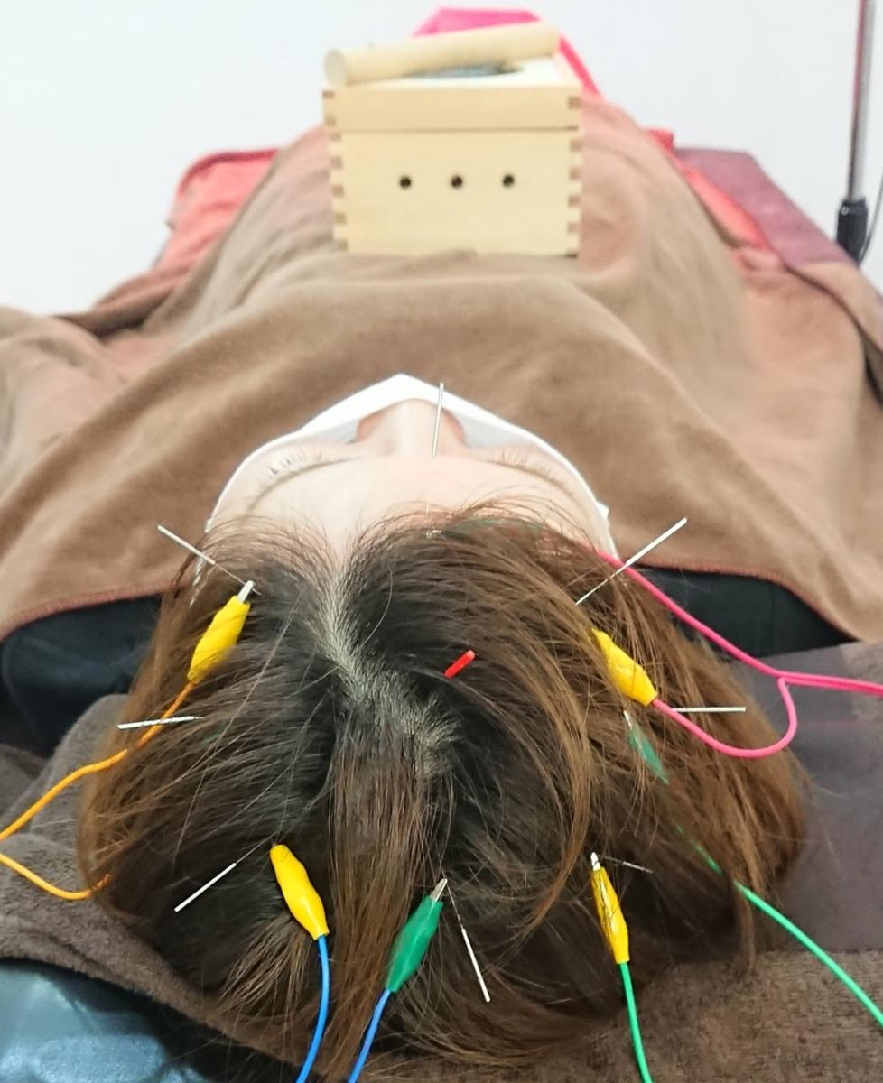快眠鍼灸の施術風景
