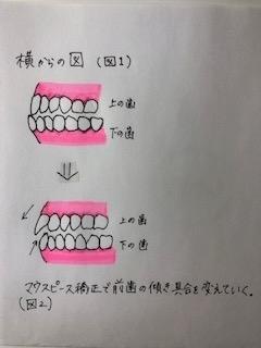 f:id:harushiro:20190918221630j:plain