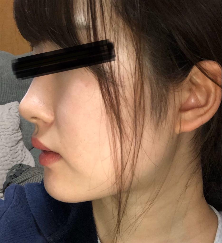 f:id:harushiro:20191207165635j:image
