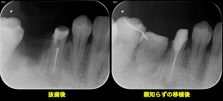 f:id:hashimoto-g-shika:20200624010433p:plain