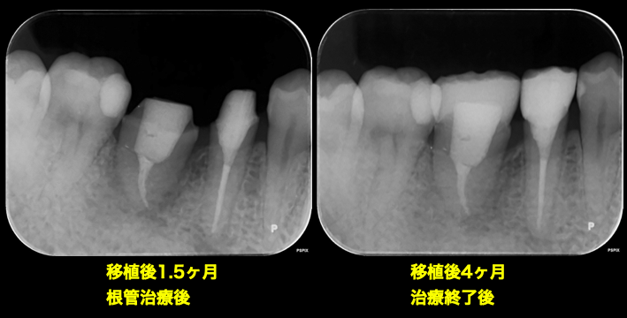 f:id:hashimoto-g-shika:20200624090831p:plain