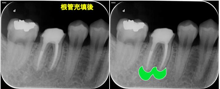 f:id:hashimoto-g-shika:20200729213848p:plain
