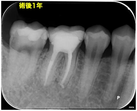 f:id:hashimoto-g-shika:20200729214036p:plain