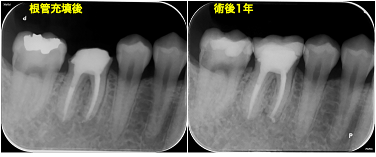 f:id:hashimoto-g-shika:20200729214242p:plain