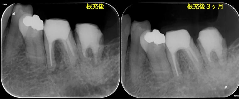 f:id:hashimoto-g-shika:20201010224250p:plain