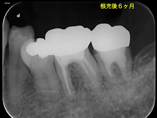 f:id:hashimoto-g-shika:20201010224311p:plain
