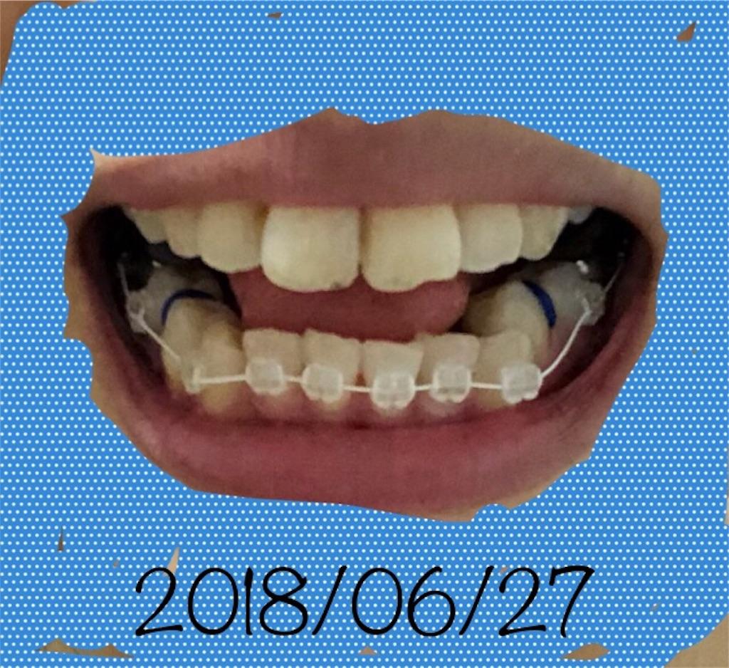 f:id:hawatakai:20180904112735j:image