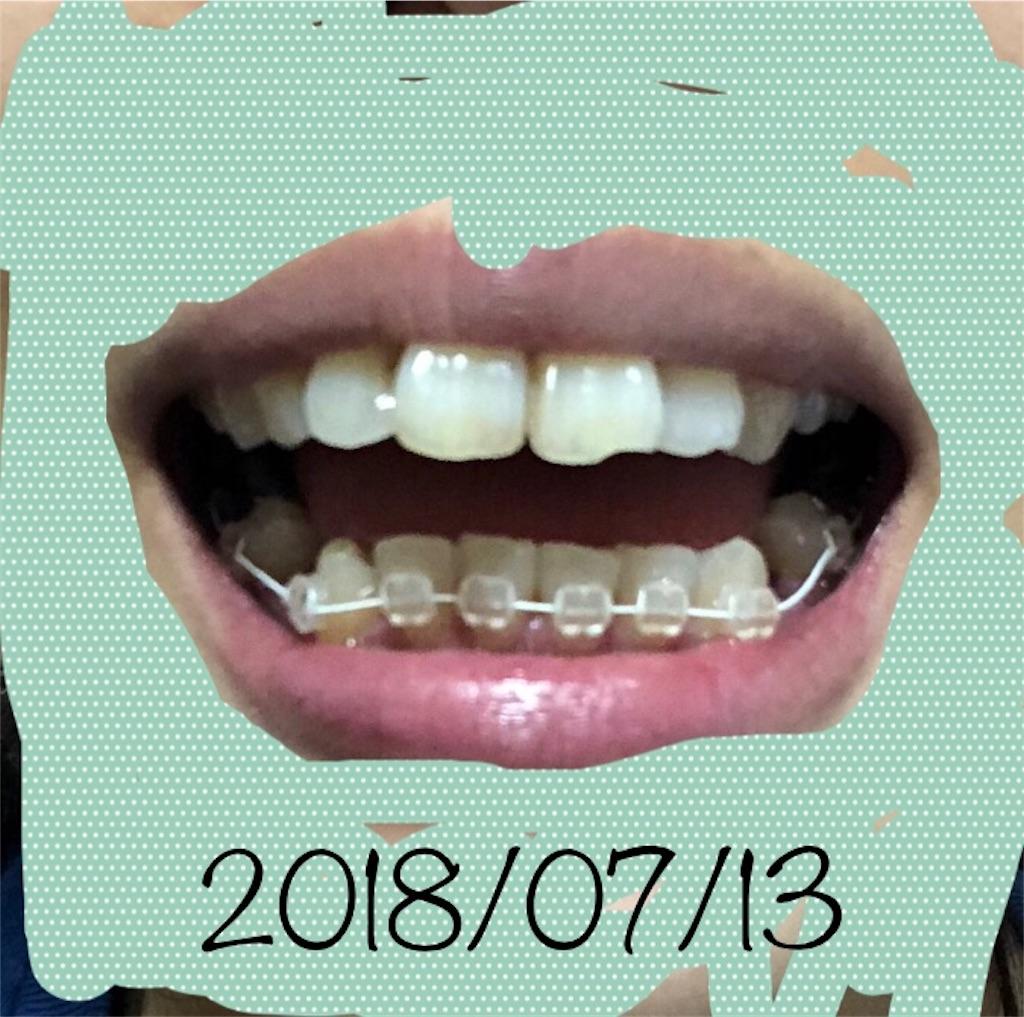 f:id:hawatakai:20180904112804j:image