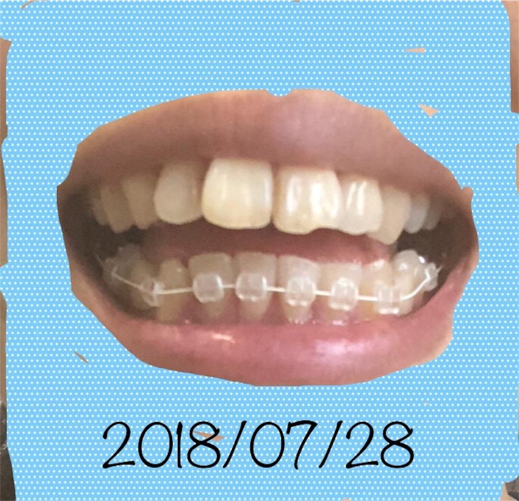f:id:hawatakai:20180905230100j:image