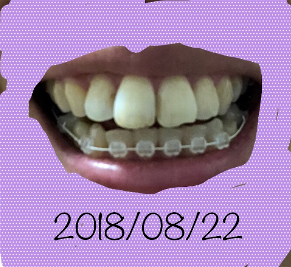 f:id:hawatakai:20180907222850j:image
