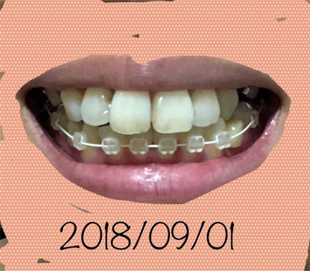 f:id:hawatakai:20180908180328j:image