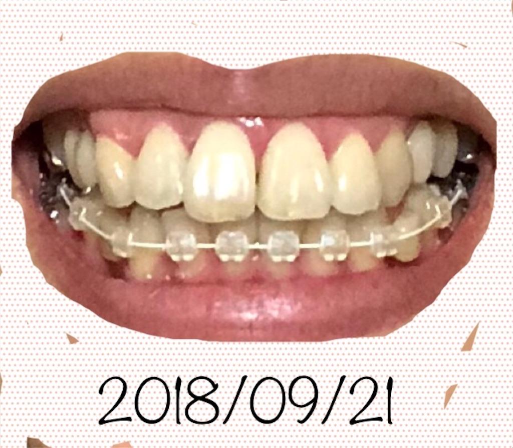 f:id:hawatakai:20180927204143j:image
