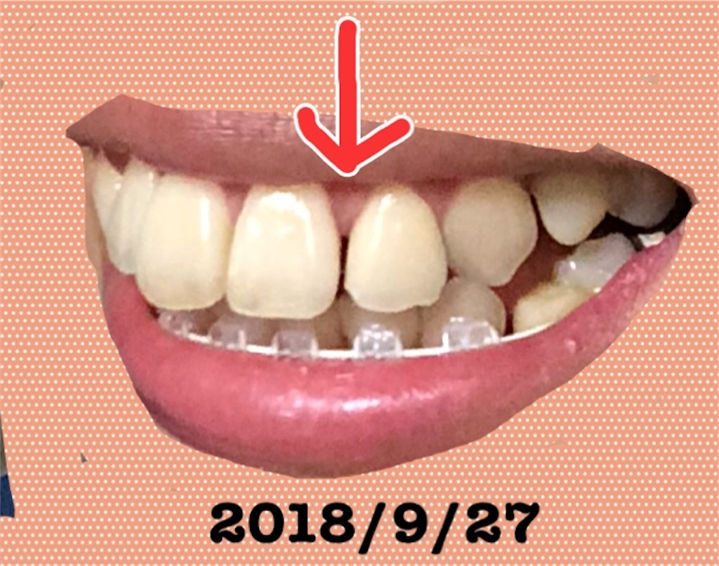 f:id:hawatakai:20180928163305j:image