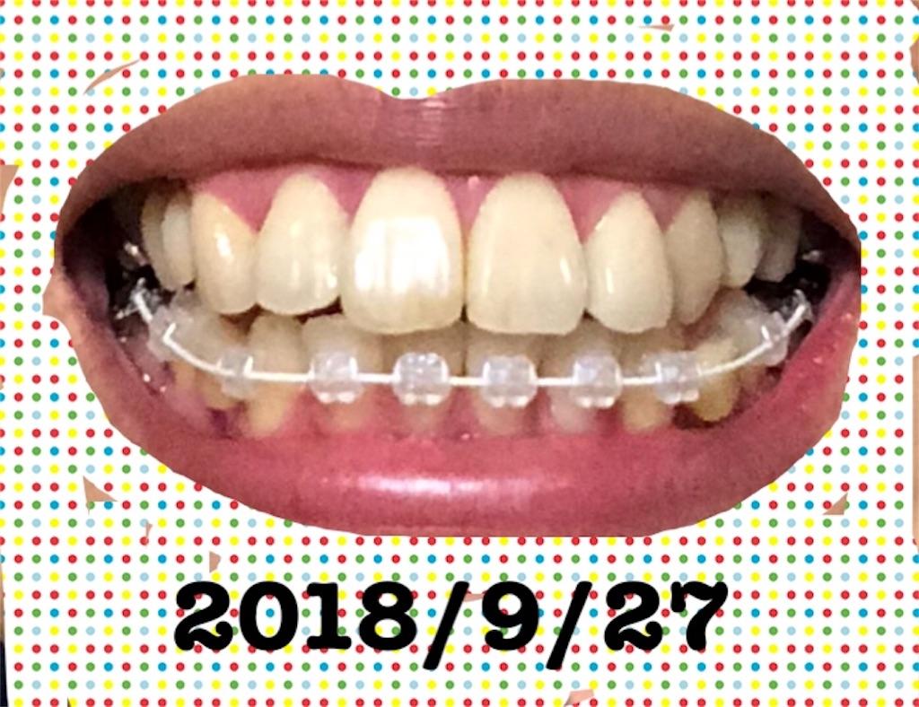 f:id:hawatakai:20180928231535j:image