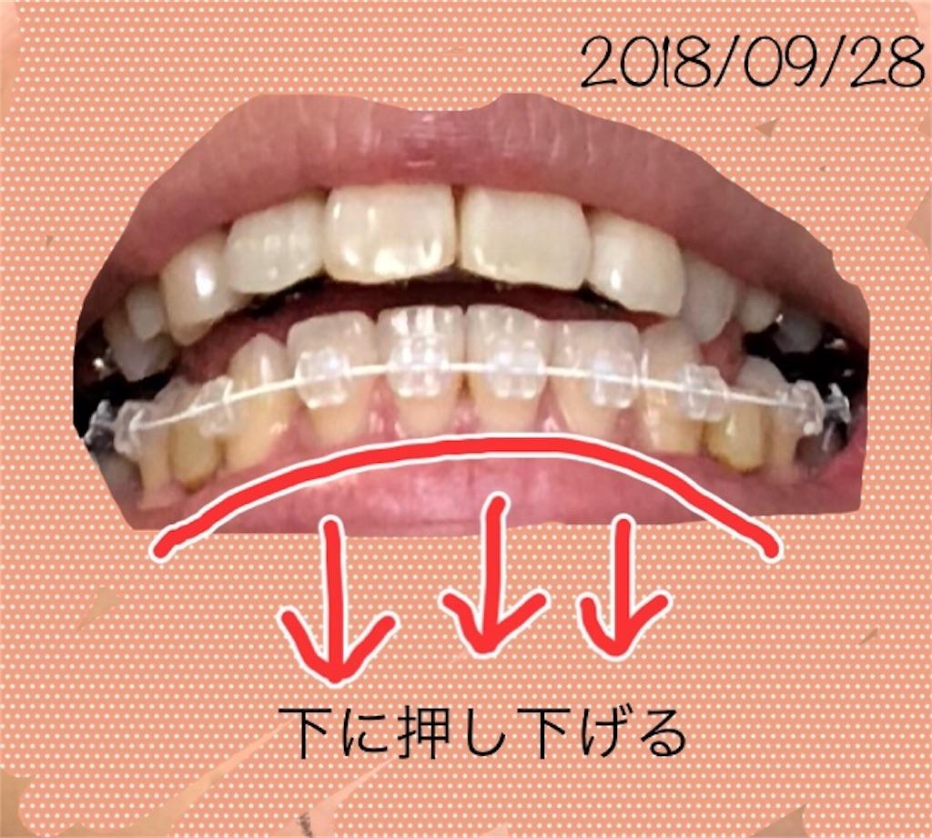 f:id:hawatakai:20180928233646j:image