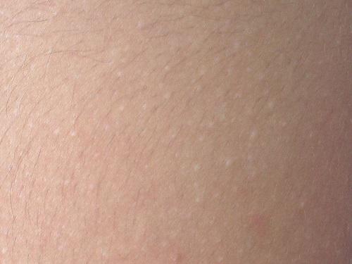 f:id:水晶汗疹:plain