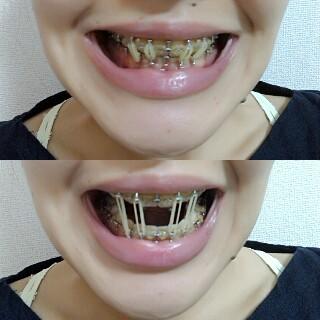 歯列矯正で歯が痛む!そんな時でも食べられる食事 …