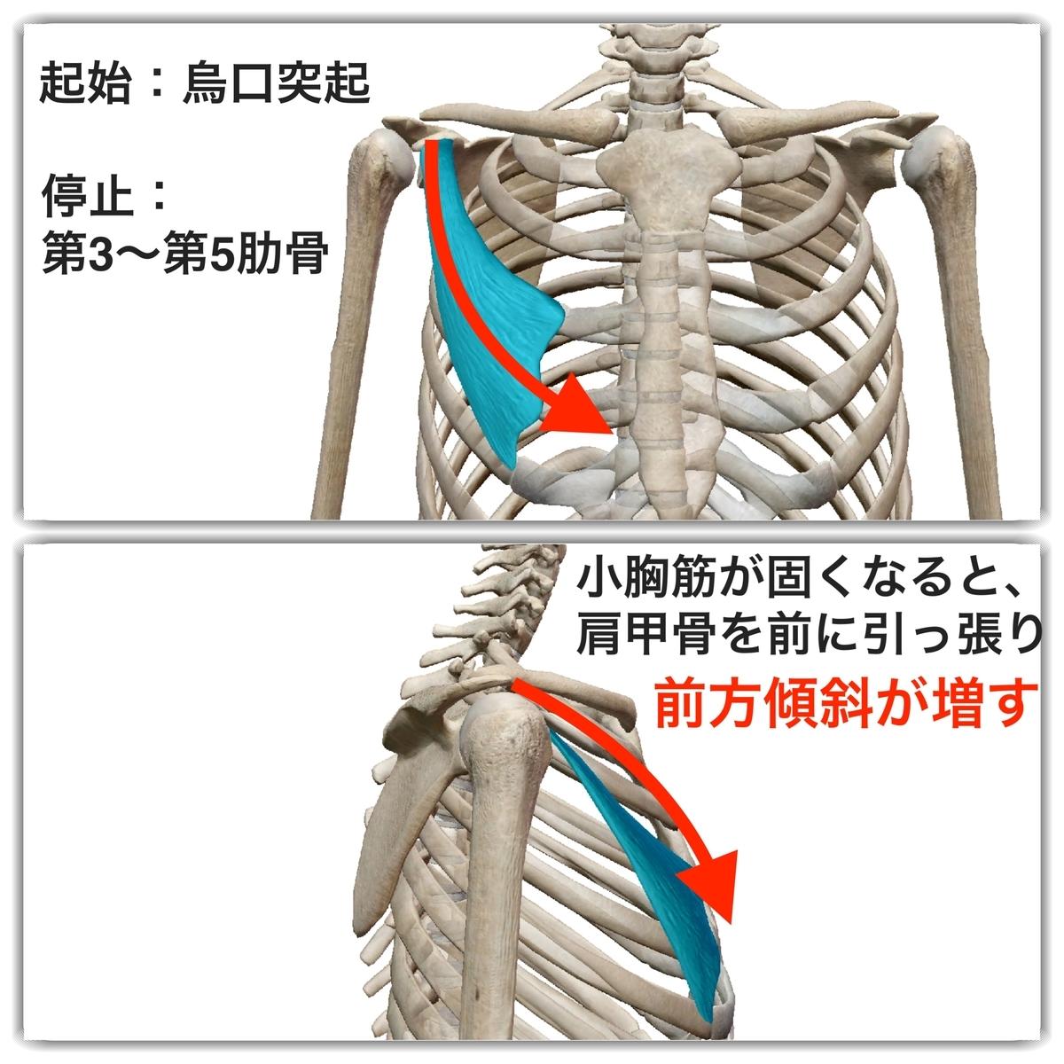 f:id:health--life:20190524130853j:plain