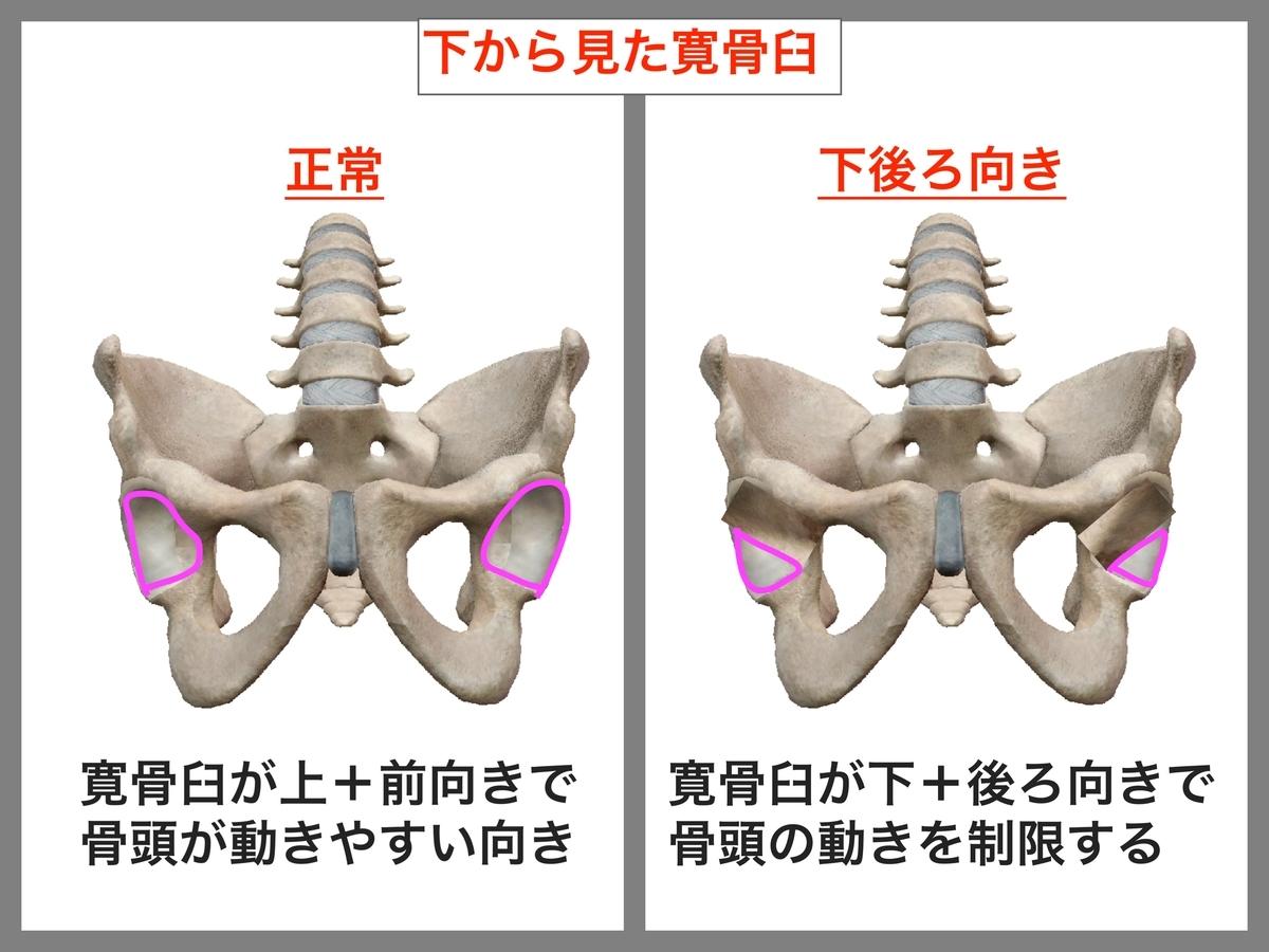 f:id:health--life:20190608181159j:plain
